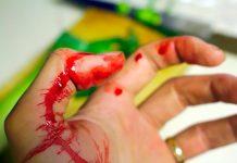 mano-cubierta-de-sangre